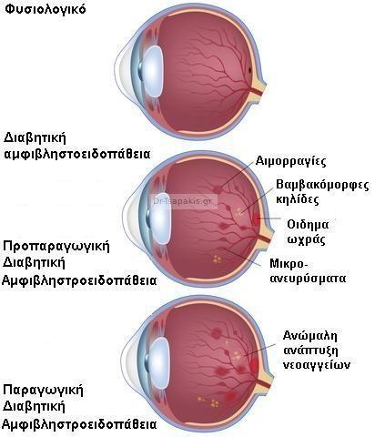 egchirisi-katarrakti-mati-glafkoma-mation-lizer-myopias-laser-sta-matia-ofthalmiatros-ofthalmiatri-diavitiki-amfivlistroidopathia