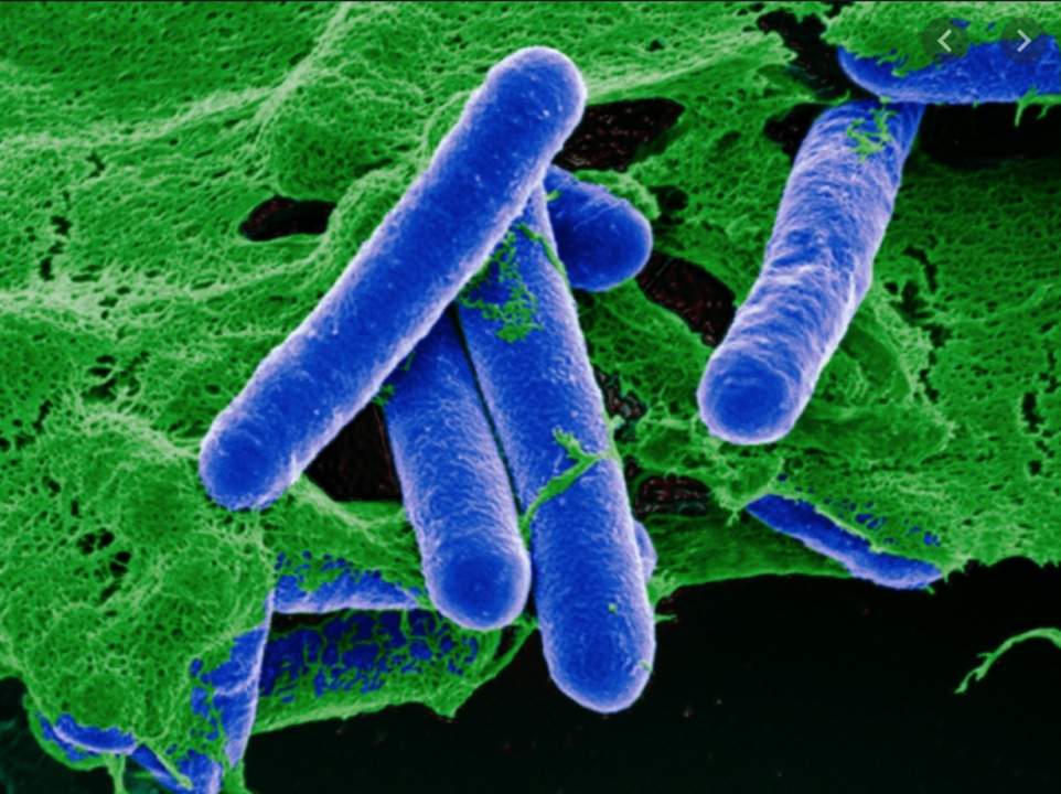 Αλλαντίαση και Clostridium botulinum