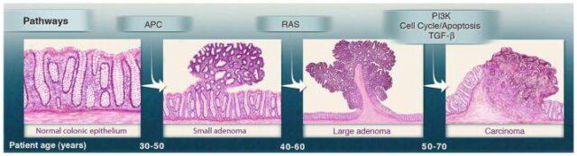 Γενετικές αλλοιώσεις και πρόοδος του καρκίνου του παχέος εντέρου.