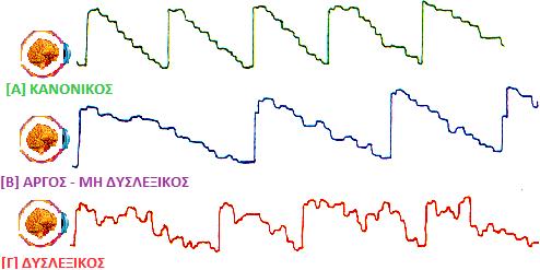 Διάγραμμα Οφθαλμοκίνησης τυπικού, αργού και δυσλεκτικού αναγνώστη.