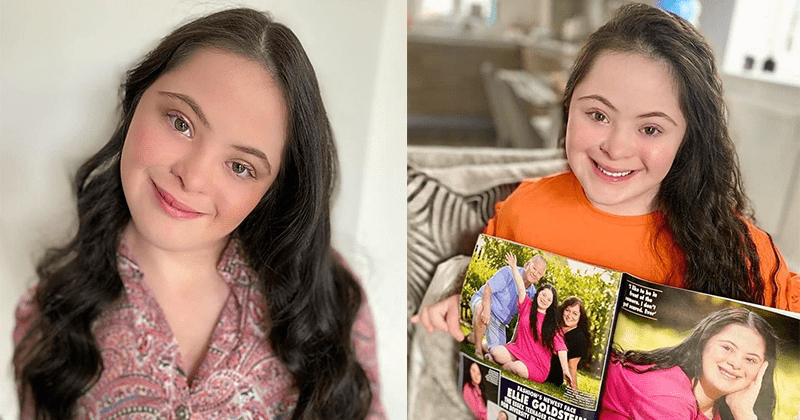 Ellie Goldstein: Το κορίτσι με σύνδρομο Down που κατακτά τον κόσμο της μόδας